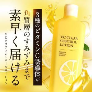VCコントロールローション120ml ビタミンC誘導体 化粧水 透明感 毛穴ケア 保湿 温泉水