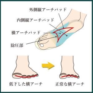 インソールプロ 中足骨頭部痛 対策 衝撃吸収 中敷き インソール 衝撃吸収 リウマチ 靴 胼胝 レディース|shoesfit|04