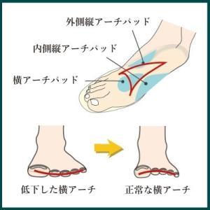 インソールプロ 外反母趾 対策 中敷き インソール 衝撃吸収 内反小趾 メンズ|shoesfit|04