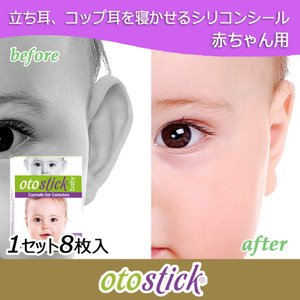 Otostick シリコンシール 赤ちゃん用 立ち耳 コップ耳 矯正 1セット|shopping-mu