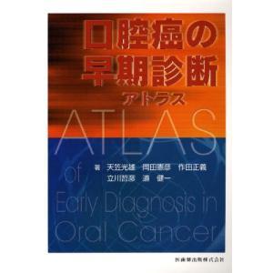 口腔癌の早期診断アトラス|starclub