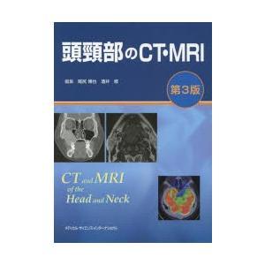 頭頸部のCT・MRI|starclub