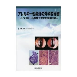 アレルギー性鼻炎の外科的治療 トリクロール酢酸下甲介化学剤手術|starclub