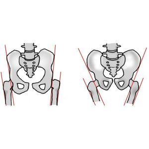 トコちゃんベルト2 Lサイズ 青葉 骨盤ベルト 妊娠中 産後 腰痛 安産|tocochan|13