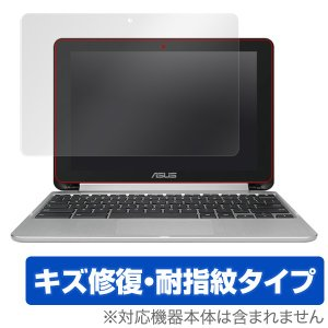 ASUS Chromebook Flip C101PA 用 液晶保護フィルム OverLay Mag...