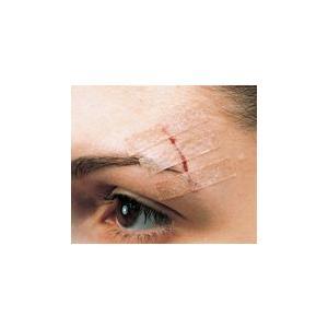 【特長】●皮膚に貼っても目立ちにくい肌色の不織布テープ。●顔面などの手術創の閉鎖・創縁固定や小外傷の...