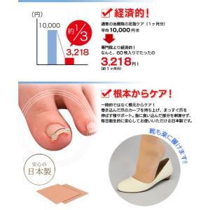 巻き爪ワイヤーガード ワイヤー 巻き爪 ブロック テープ リフトシール 1箱 1ヶ月分 まきづめ 巻爪|wide02|05