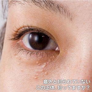 目の周りの白いブツブツ専用クリーム 角質ケア化粧品 ビューナ シロポロン