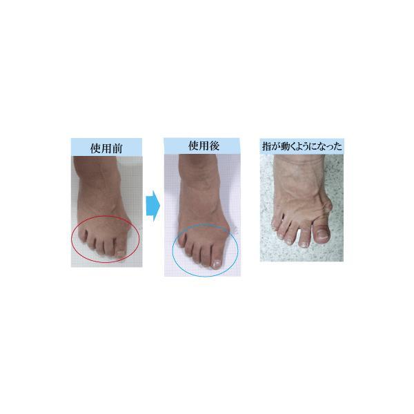 本革 レディース かわいい 幅広 4E ワンベルト 外反母趾 歩き方 対策 トレーニング シューズ BiCorrect 美・コレクト G2011 |biformlab|05
