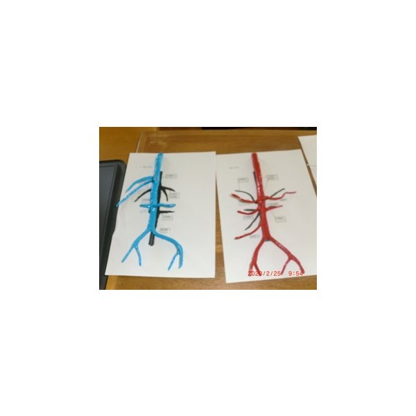 動脈静脈門脈胆道4管立体模型標準型作成キット|deepseawartergm0|17