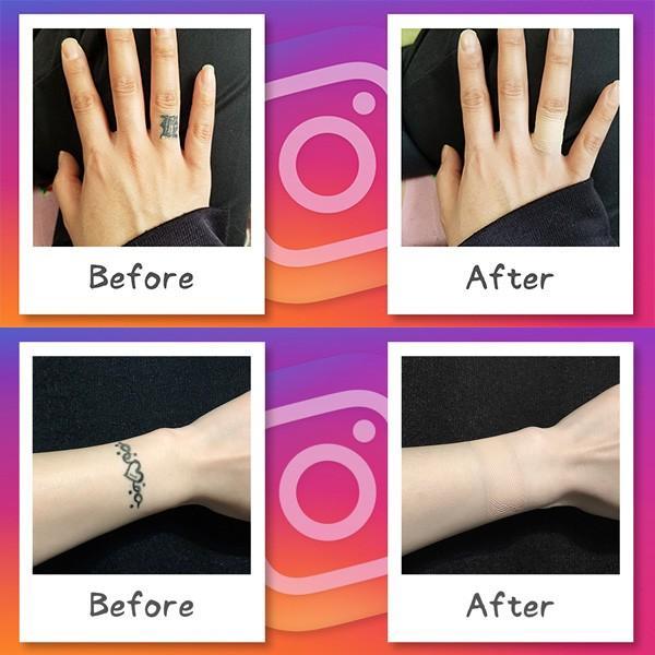 ファンデーションテープ お試しセット 選べる4色3サイズ タトゥー 隠し シール 傷跡 隠す 防水 つや消し 肌質感 メール便 送料無料 ログインマイライフ|foundation-tape-seal|09