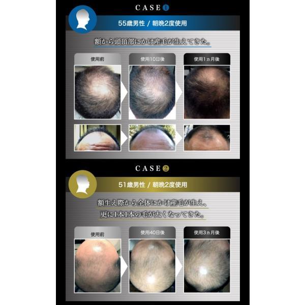 モストヘアー 毛根 を細胞レベルから活性化させる新しい 頭皮 用美容液です。国内送料無料!(※沖縄県は別途送料)|good-smiley|04