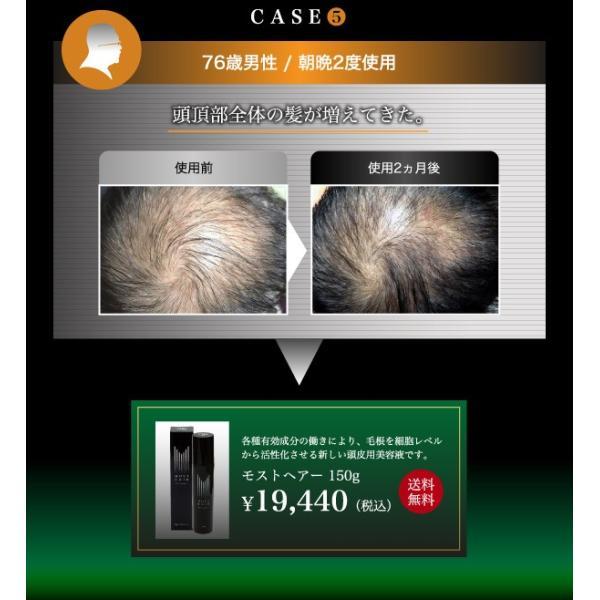 モストヘアー 毛根 を細胞レベルから活性化させる新しい 頭皮 用美容液です。国内送料無料!(※沖縄県は別途送料)|good-smiley|06
