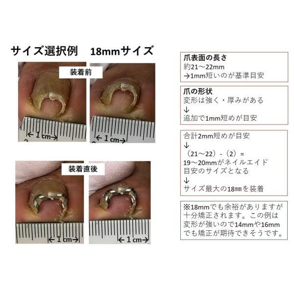 巻き爪 治し方 自分で 巻き爪 矯正 ネイルエイド   巻きづめ 治療 リフト 爪ブロック ワイヤー ガード  ケア 14mm|himawari-corp|19