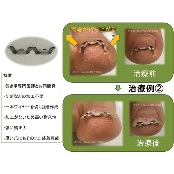 巻き爪 治し方 自分で 巻き爪 矯正 ネイルエイド   巻きづめ 治療 リフト 爪ブロック ワイヤー ガード  ケア 14mm|himawari-corp|07