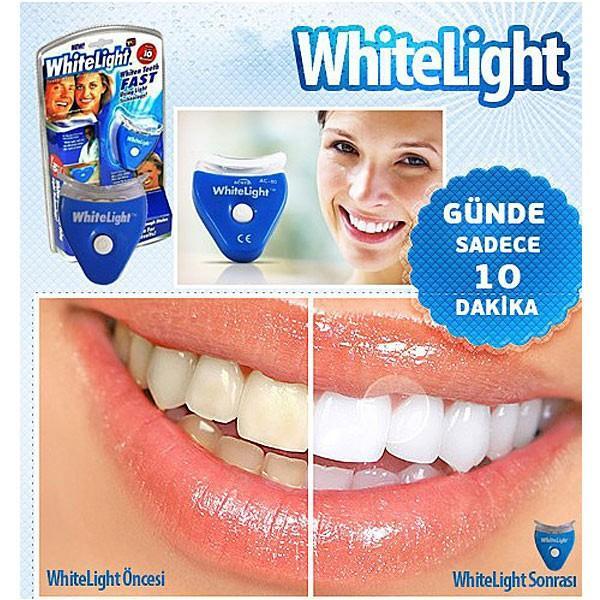 自宅で簡単!ホワイトニング 簡単 白い歯 whitelight マウスピース itempost