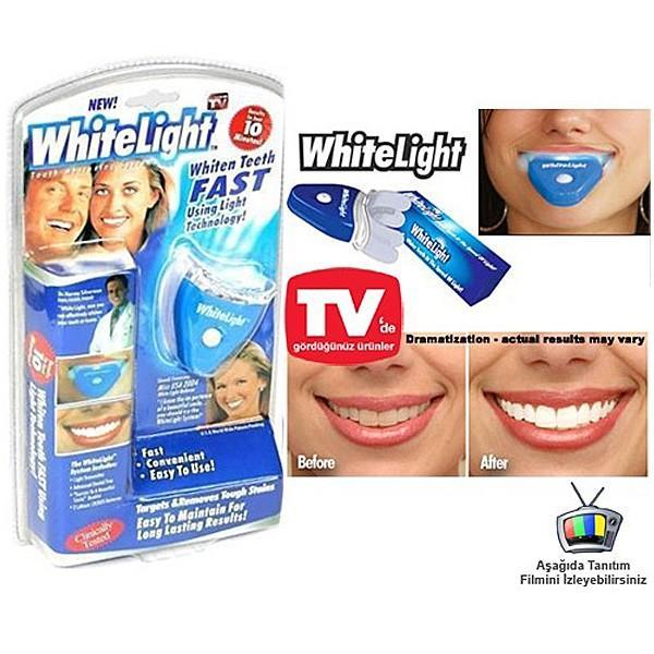 自宅で簡単!ホワイトニング 簡単 白い歯 whitelight マウスピース itempost 03