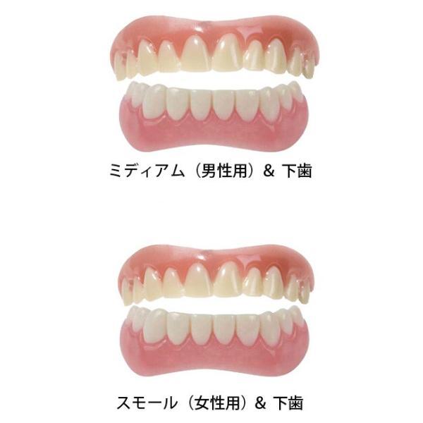 インスタントスマイル《上下2個セット》(上歯用 下歯用 付け 歯 前歯 審美歯 義歯)|kireispot|02