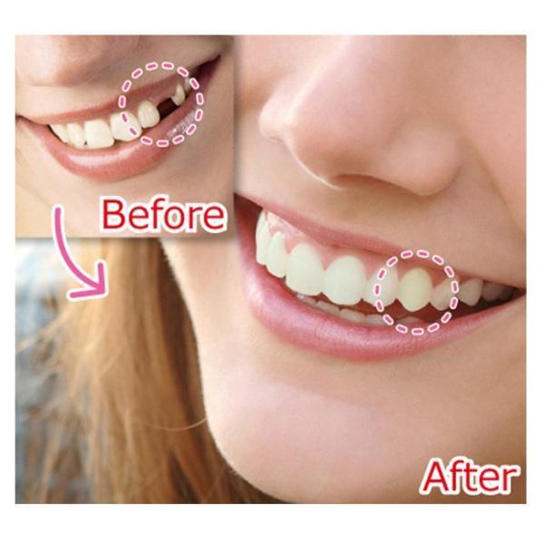 即納 インスタントスマイル テンポラリートゥース リプレースメントキット(部分用 抜け歯専用 付け 歯 前歯 審美歯 義歯)|kireispot|05