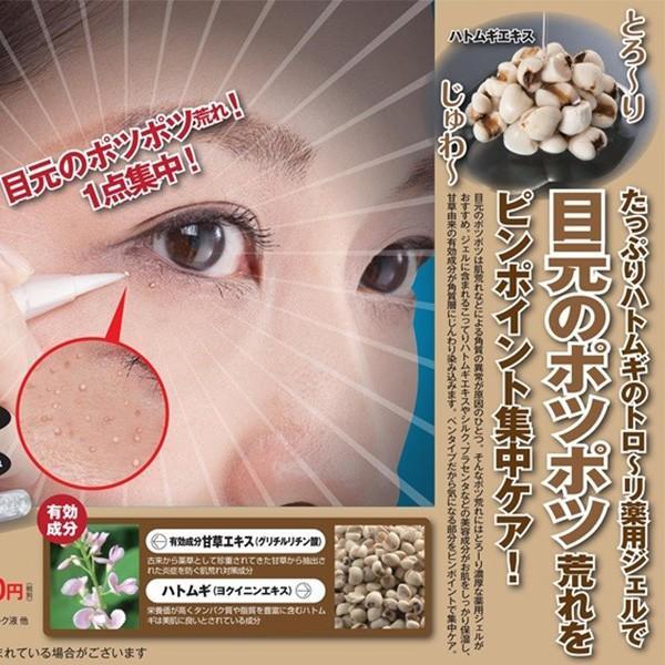 の イボ 目 周り 目の下にイボ状の突起物、原因は 女性にできやすく予防困難