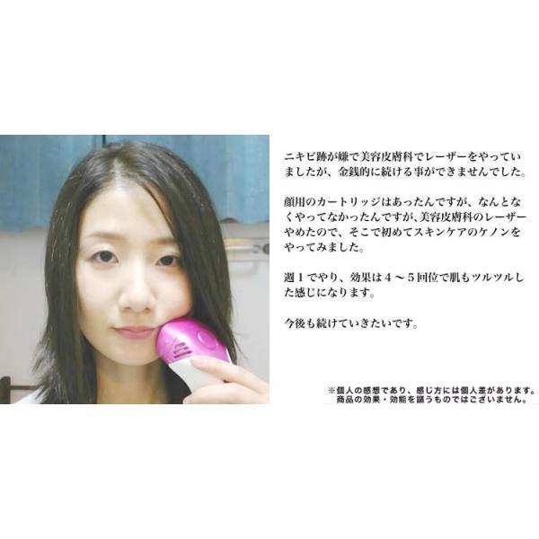 脱毛器 美顔器 ケノン ランキング 1位 光美容器 家庭用脱毛器 美顔 たっぷりセット 光美顔 フラッシュ|mrock|10