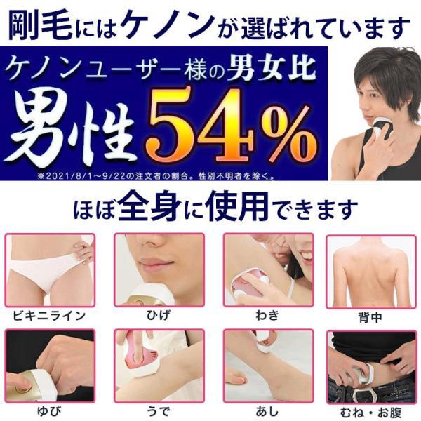 脱毛器 ケノン 公式 最新版 本体のご注文はこちら 日本製 家庭用 脱毛器ランキング1位|mrock|07