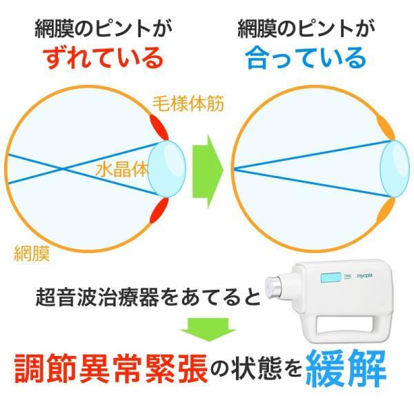 ミオピア[超音波医療機器]純正アダプター付き|myopiashop|03