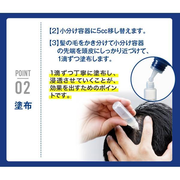 3本セット 男性用 育毛剤 バイオテック バイオウィズワン ベータS 300mlボトル(約1ヵ月分) 抜け毛 育毛トニック スカルプ 頭皮 乾燥|storebiotech|11