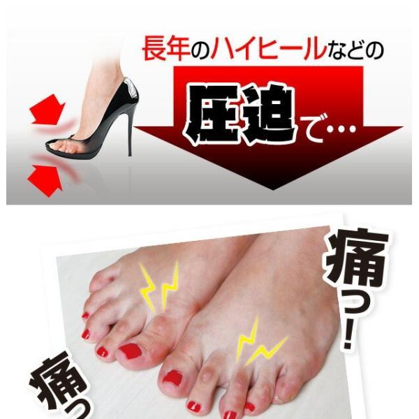 \国内正規品/ まめ ゆび サック   足指のマメ を 予防   足指 マメ タコ 魚の目 巻き爪 ささくれ 痛い つま先 サック パック 乾燥 vivian1616 03
