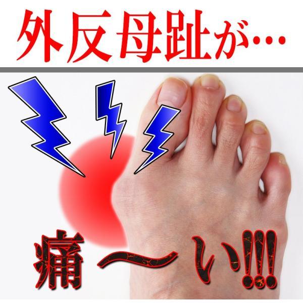 外反母趾 親指の付け根 親指 開く 広げる パッド パット テーピング テープ サポーター 痛み|vivian1616|02