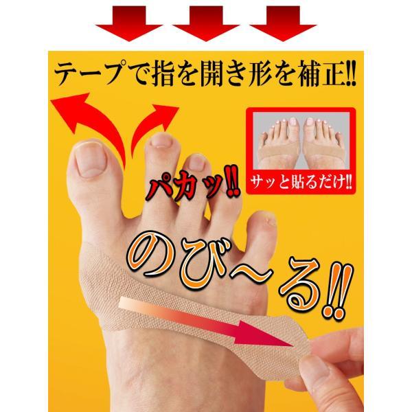 外反母趾 親指の付け根 親指 開く 広げる パッド パット テーピング テープ サポーター 痛み|vivian1616|07