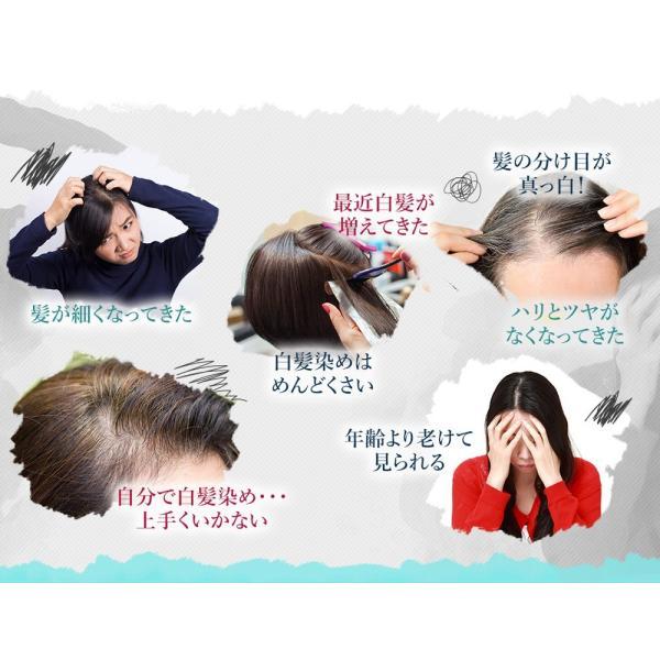 P10倍 初回65%OFF  送料無料  KURO GLOSS 3ヶ月分(270粒)メンズ レディース 白髪染め 白髪 黒髪 ヘアケア 薄毛 wa-s 03