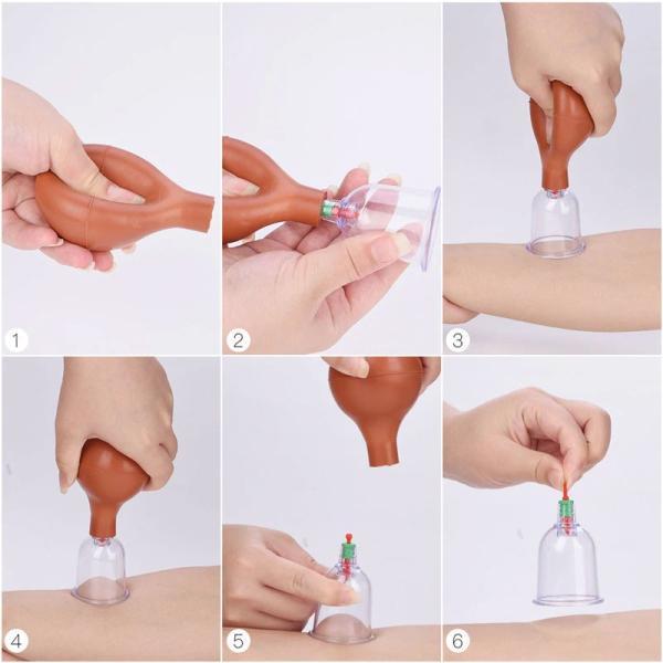 カッピング 吸い玉カップ6種 吸引ポンプ付|wakasugi2012|08