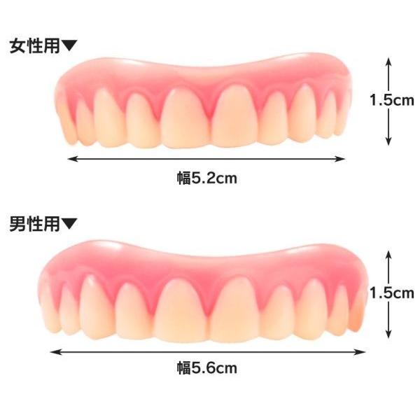 インスタントスマイル2330 上歯用 付け歯 前歯 入れ歯 義歯 歯の悩み 脱着 黄ばみ歯 欠け歯 すきっ歯|wide|03