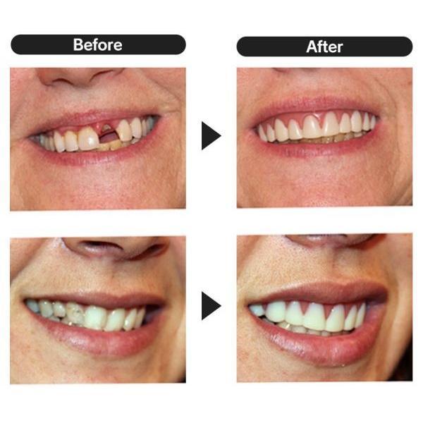 インスタントスマイル2330 上歯用 付け歯 前歯 入れ歯 義歯 歯の悩み 脱着 黄ばみ歯 欠け歯 すきっ歯|wide|04