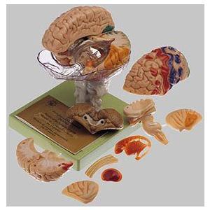 ソムソ社 15分解脳模型(一部色付) bs25/1 鍼灸 模型
