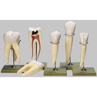 無料健康相談付 ソムソ社 歯の5種類の模型 es11 鍼灸 模型