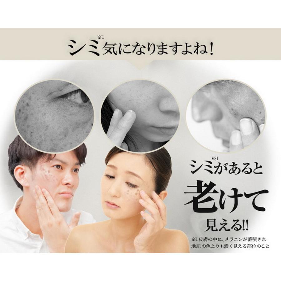 トラネキサム酸配合 薬用 シミノンクリーム 20g 医薬部外品 日本製 シミ 美白 そばかす 乾燥肌 くすみ しみ取り 肌あれ|fukumimi-shoten|02