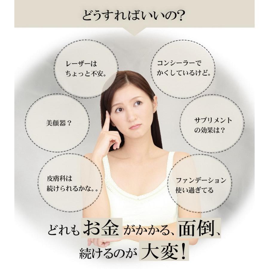 トラネキサム酸配合 薬用 シミノンクリーム 20g 医薬部外品 日本製 シミ 美白 そばかす 乾燥肌 くすみ しみ取り 肌あれ|fukumimi-shoten|03