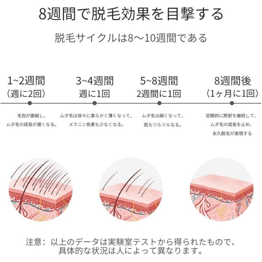 Sarlisi 脱毛器 lpl光 家庭用 九段階調節 全身脱毛 男女兼用 美肌機能搭載 60万回照射|general-purpose|02