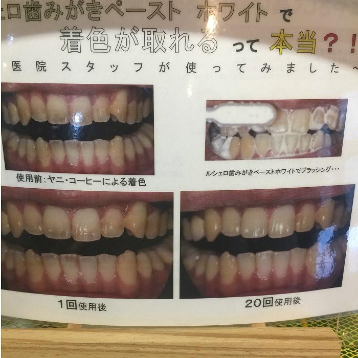 ホワイトニング歯磨き粉 ルシェロ歯磨きペーストホワイト 1個|hamigakilife|02