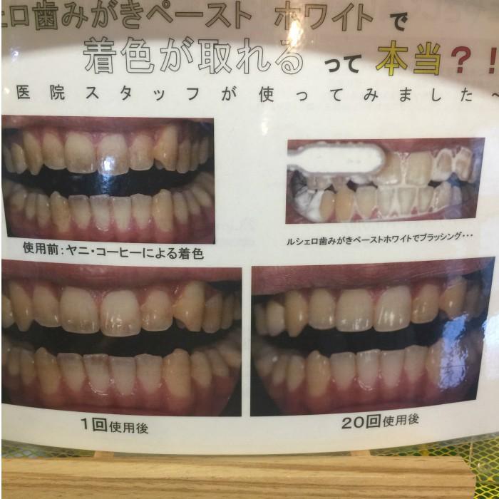 ホワイトニング歯磨き粉 ルシェロ歯磨きペーストホワイト 3個 hamigakilife 02