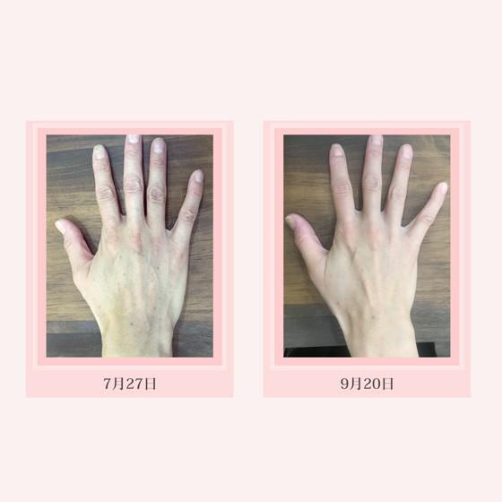 キュアミスト(化粧水)|healing-trees|07