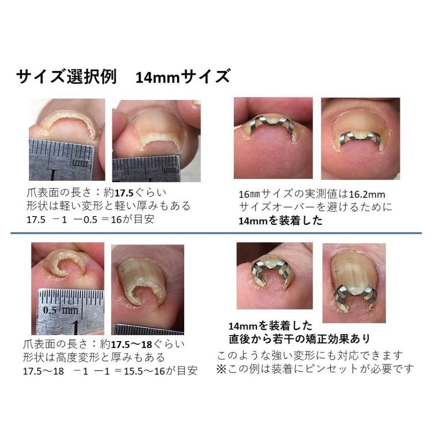 巻き爪 治し方  巻き爪 治療 ネイルエイド 14mm 自分で矯正 ワイヤー クリップ ガード 金具|himawari-corp|18