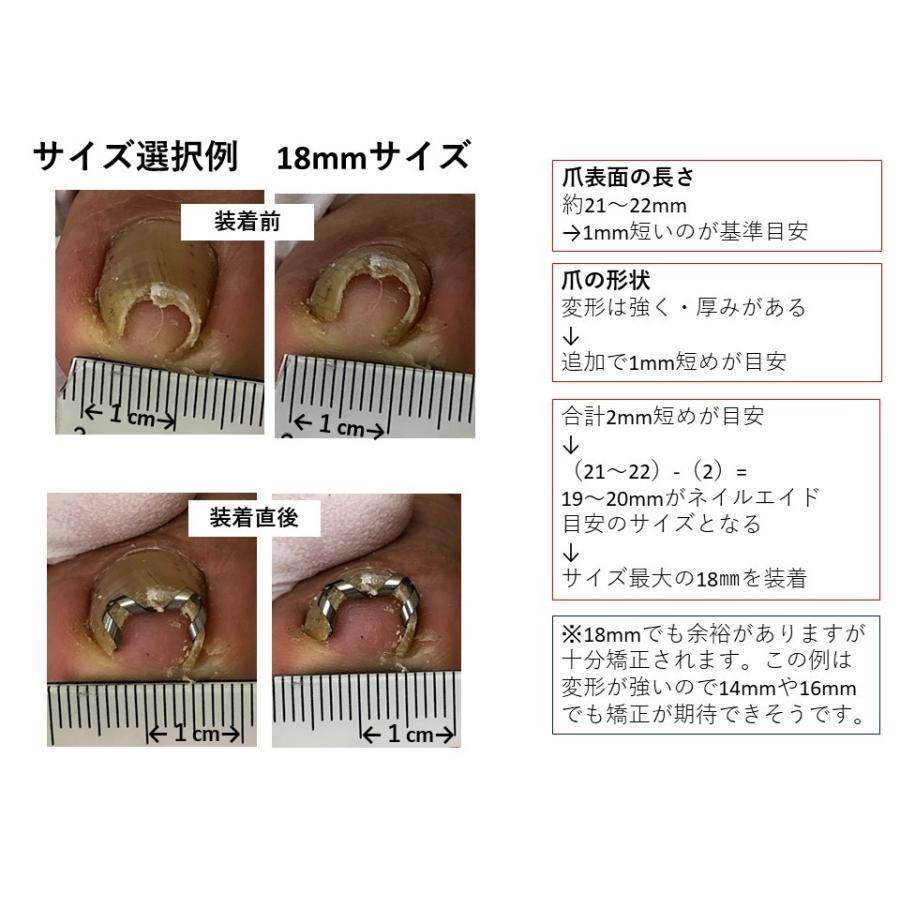巻き爪 治し方  巻き爪 治療 ネイルエイド 14mm 自分で矯正 ワイヤー クリップ ガード 金具|himawari-corp|19