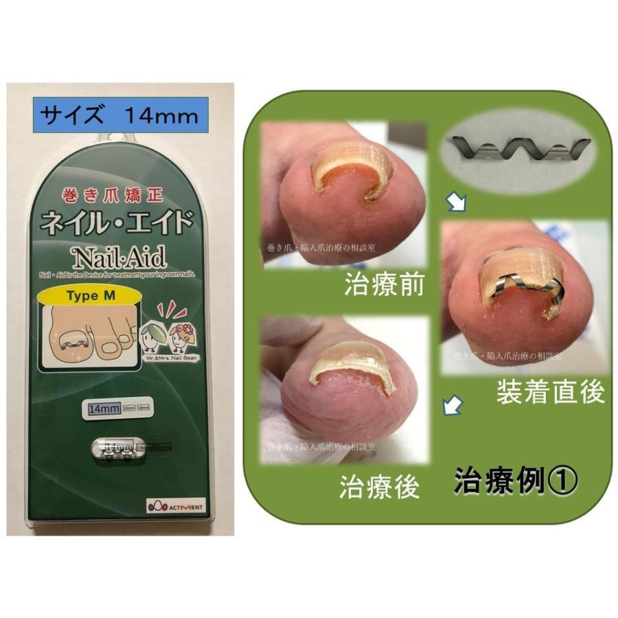 巻き爪 治し方  巻き爪 治療 ネイルエイド 14mm 自分で矯正 ワイヤー クリップ ガード 金具|himawari-corp|06