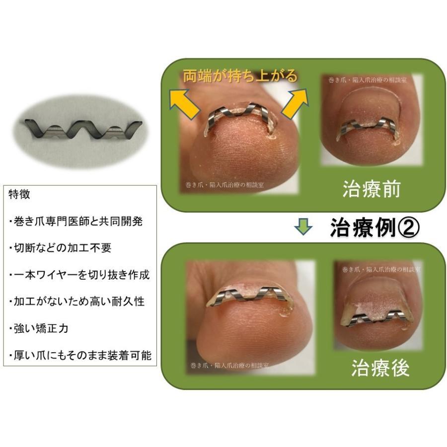 巻き爪 治し方  巻き爪 治療 ネイルエイド 14mm 自分で矯正 ワイヤー クリップ ガード 金具|himawari-corp|07
