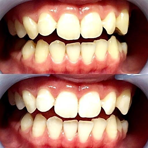 セルフ歯のエステセット家庭版  日本製 専用ホワイトニングセット同梱 JOYinternational|ichigo-japan|03
