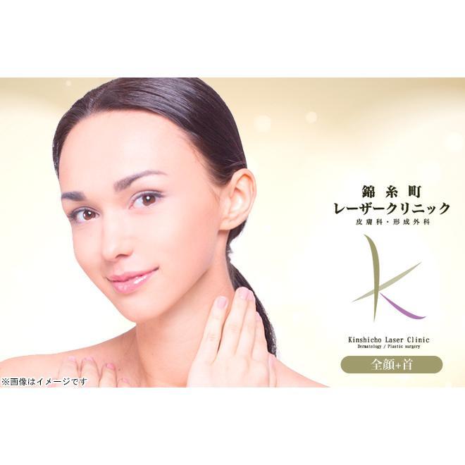 【錦糸町】ドクター施術!HIFU(ウルトラセルQプラス)全顔+首