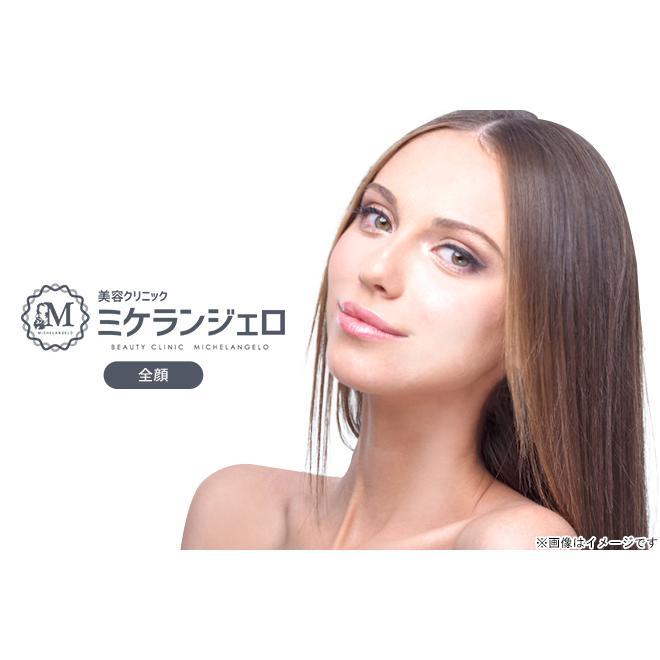 心斎橋 期間限定の激安セール 高密度焦点式超音波 HIFU 全顔 数量は多